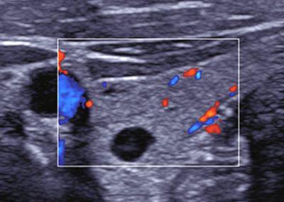 thyroid_cyst_L7-3
