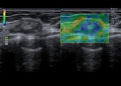 Breast nodule in Elastography 8