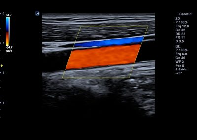 Carotid artery and jugular vein in Color Flow ecube 8
