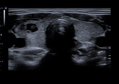 Thyroid nodule in 2D 8