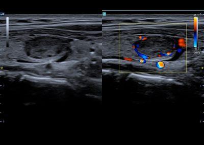 Thyroid nodule in Dual Live 8