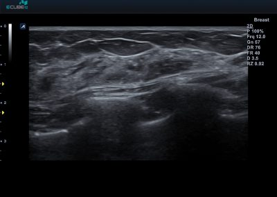 3 Breast with L3-12HWD1
