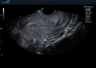 37 Uterus longitudinal view1